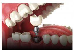 د.محمد حسن يكشف أسباب وضع تركيبات الأسنان وأنواعها